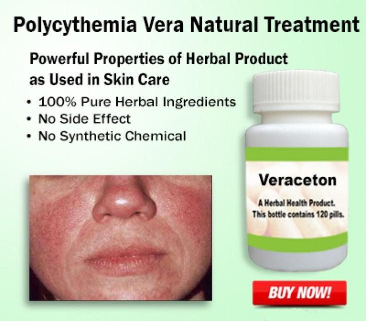 Natural Treatment for Polycythemia Vera